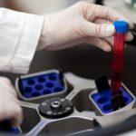 prp centrifuge - platelet gel services
