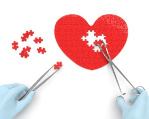 cardiac-surgery-min