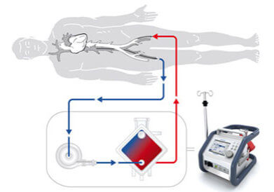 extracorporeal life support