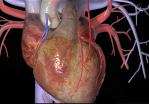 CABG PROCEDURE